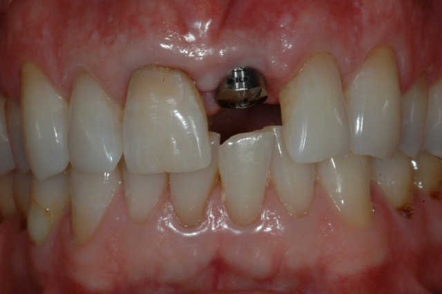 BEFORE - Single implant with abutment and discoloured central incisor - OTTAWASMILE