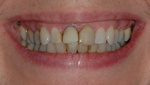 BEFORE -Discoloured Teeth restored with Smile Makeover - Dr. Stewart Hum
