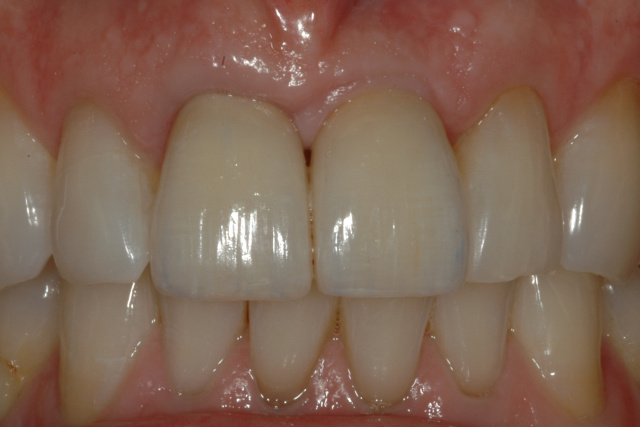 AFTER - Final ceramic crowns on central incisor and single implant - OTTAWASMILE