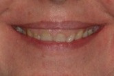 BEFORE -Pretreatment smile with abundant gingival display and dark, short teeth