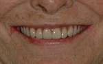 AFTER - New smile with Dentures and 2 lower implants