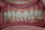 AFTER - Upper Spaces Restored with Implants, Ceramic Veneers on the Teeth - Prosthodontics on Chamberlain