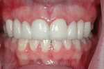 AFTER - Upper Spaces Restored with Bridges - Prosthodontics on Chamberlain