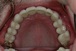 AFTER - Upper Teeth Restored with Ceramic Crowns - Prosthodontics on Chamberlain, Ottawa
