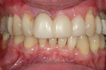 BEFORE - Failing upper teeth due to periodontal disease