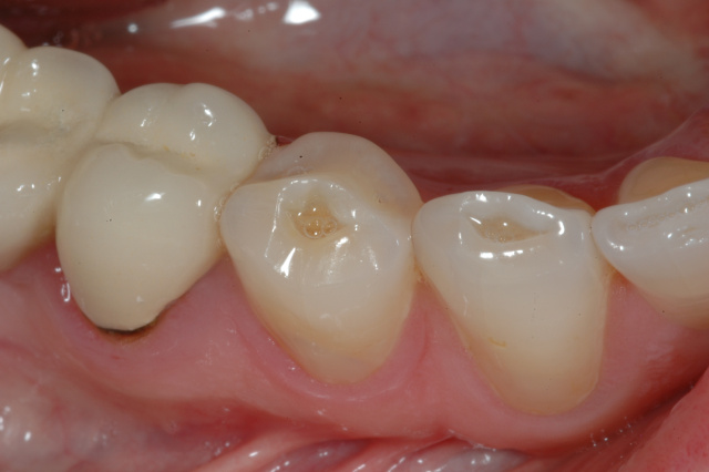 Bruxism/Tooth Grinding habits -dental treatment options at ...