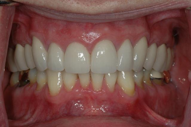 AFTER - Restored upper teeth with Crowns/Veneers - Prosthodontics on Chamberlain