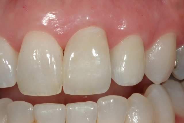 CASE 2 -AFTER restored with two new crowns