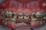 BEFORE -The Orthodontist aligns the small and missing teeth