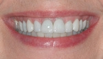 AFTER - Restored with Ceramic Crowns and Veneers - Dr. Stewart Hum
