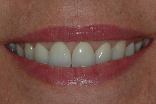 AFTER -Final veneers after orthodontic and periodontic treatment