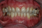 BEFORE - Unesthetic Upper Teeth - Prosthodontics on Chamberlain