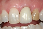 BEFORE - Discoloured Upper Incisors - Prosthodontics on Chamberlain