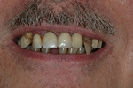 BEFORE - Failing Upper/Lower Teeth - Prosthodontics on Chamberlain