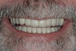 AFTER -Final full mouth crowns with restored smile