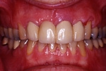 BEFORE - Older discoloured Crowns - Prosthodontics on Chamberlain