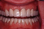 AFTER - New Upper Crowns and Lower Veneers - Prosthodontics on Chamberlain