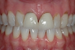 BEFORE - Older Upper Crowns and Veneers - Prosthodontics on Chamberlain