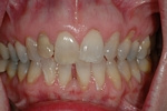 BEFORE -Upper Teeth Restored - Ceramic Veneers - Prosthodontics on Chamberlain - Ottawa Implants