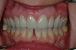 AFTER -Upper Teeth Restored - Ceramic Veneers - Prosthodontics on Chamberlain - Ottawa Implants