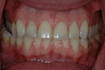 BEFORE - Aged Upper Veneers - Ceramic Veneers - Prosthodontics on Chamberlain - Ottawa Implants