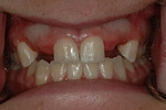 BEFORE - Missing upper teeth - Prosthodontics on Chamberlain