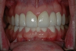 AFTER - Final Upper Ceramic Bridges - Prosthodontics on Chamberlain