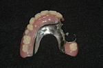 AFTER - Upper LOCATOR Cast Partial Denture - Prosthodontics on Chamberlain