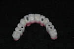 AFTER - Metal-ceramic bridge ready to be placed - Prosthodontics on Chamberlain