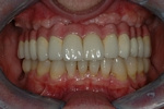 AFTER- The final bridge attached to 6 upper implants - Prosthodontics on Chamberlain