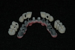 AFTER - The Metal Bridge with cemented Crowns - Dental Implants Bridge - Prosthodontics on Chamberlain - Ottawa Implants