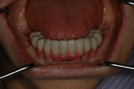 AFTER - Lower Restored with Full Bridge - Dental Implants Bridge - Prosthodontics on Chamberlain