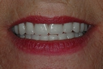AFTER - New Denture Smile