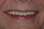 AFTER - Final smile with full mouth Dental Implant Bridges