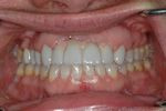 AFTER -Final restorations of implants, crowns and ceramic veneers