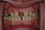 BEFORE -Several missing teeth with a large midline diastema